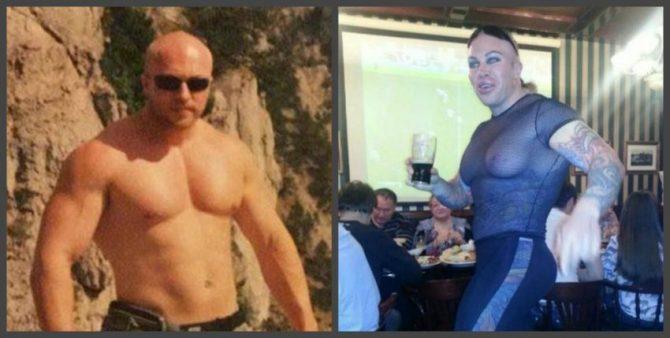 до и после удаления имплантов из груди