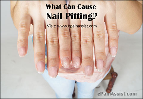 Nails pitting