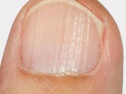 Deep horizontal ridges in toenails