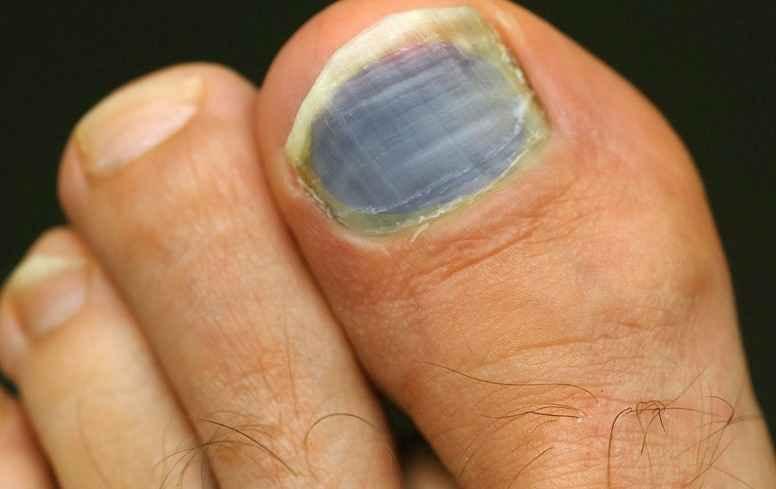 Blue toenails causes