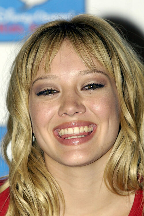 Celebrities smiles