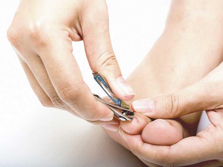 Filing thick toenails