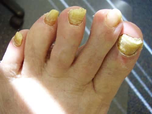 Thick rounded toenails