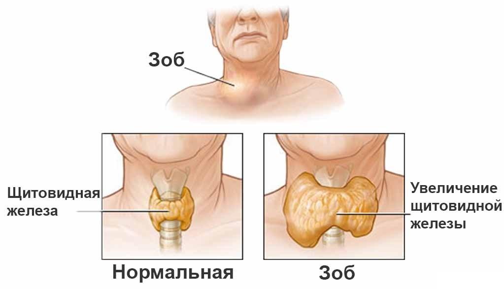 Вузли в щитовидній залозі розміри