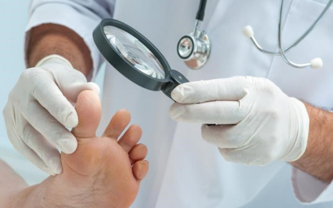 Treatment of Diabetic Foot with Hyperbaric Oxygenation