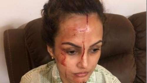निशा रावल ने दिखाई चोट की तस्वीरें, दावा किया- करण का है किसी और से अफेयर