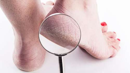 Natural fixes to get rid of cracked heels