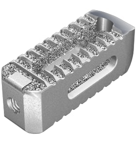 Stryker's patent-protected 3D printing process produces porous structures within its implants, such as this Tritanium PL Cage component, for quicker incorporation into the body. (Image courtesy of Stryker.)