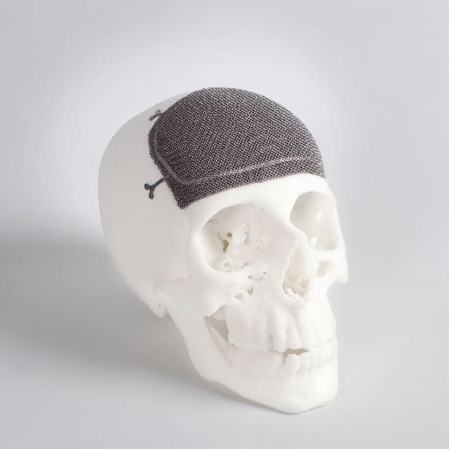 A custom titanium 3D-printed cranio-maxillofacial implant made using EBM technology. (Image courtesy of Arcam.)