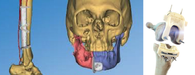 A model of patient-specific CMF surgical guides and knee resection guides. (Image courtesy of DePuy Synthes.)