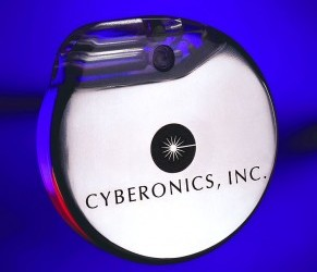 Cyberonics Continues Upward Trek on Another Earnings Beat