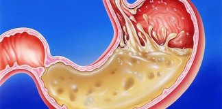 HEAL gastritis WITH SMART FOOD