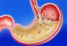 HEAL gastritis WITH SMART FOOD