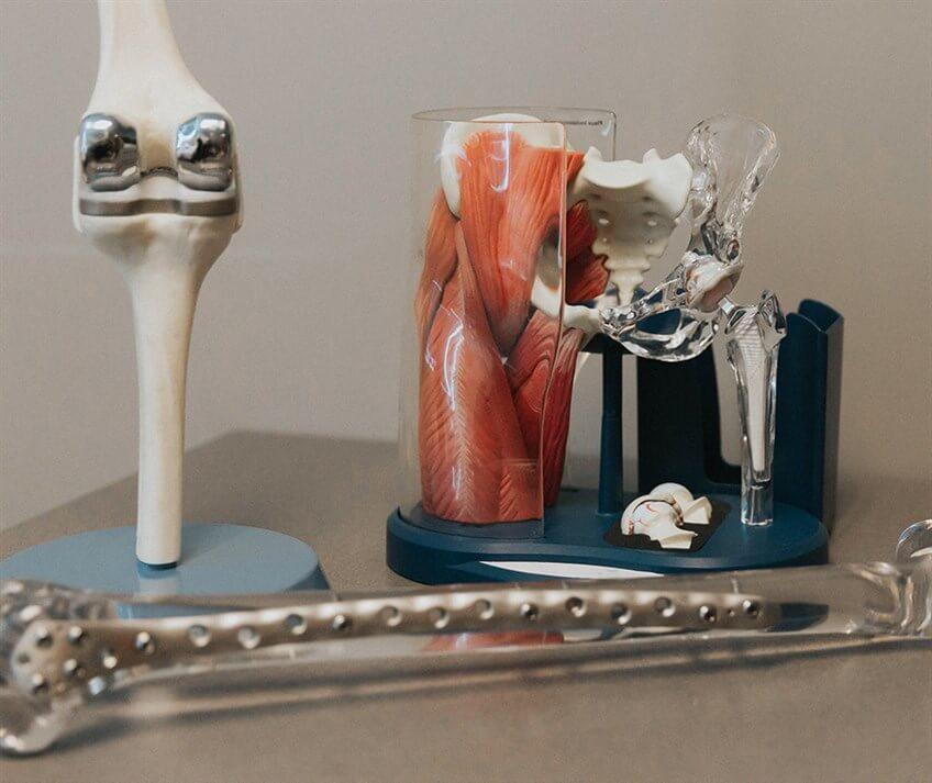 general orthopedic bone and joint models