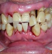 teeth bad