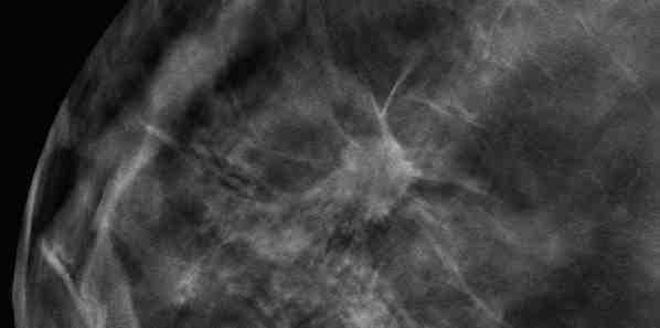 oslo study tomosynthesis