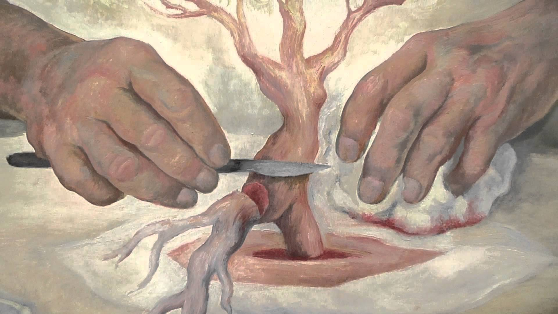 The Hands of Dr. Moore (rivera)