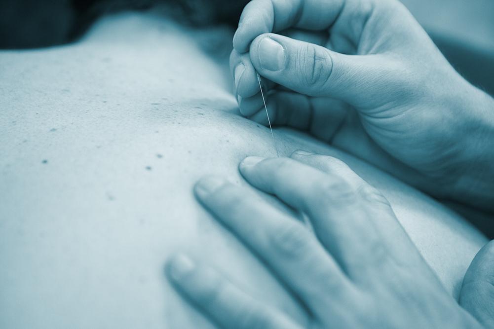 Fysiotherapie Rijnkade Dry Needling