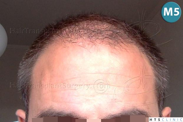 Dr.Devroye-HTS-clinic-4225-FUE-NW-V_VI-22.jpg