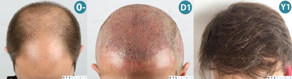 Dr.Devroye-HTS-clinic-4225-FUE-NW-V_VI-Montage2.jpg