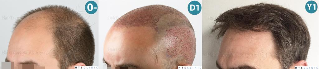 Dr.Devroye-HTS-clinic-4225-FUE-NW-V_VI-Montage3.jpg