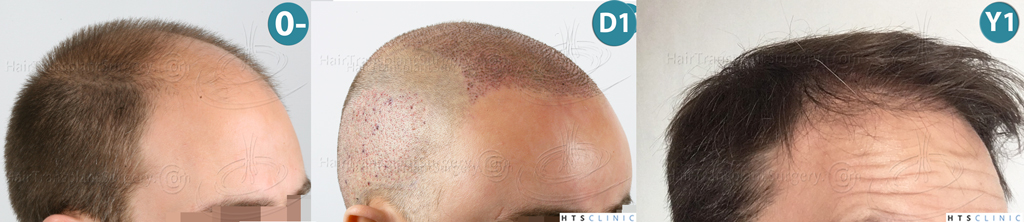 Dr.Devroye-HTS-clinic-4225-FUE-NW-V_VI-Montage4.jpg
