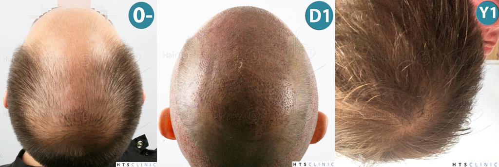 Dr.Devroye-HTS-clinic-4225-FUE-NW-V_VI-Montage5.jpg
