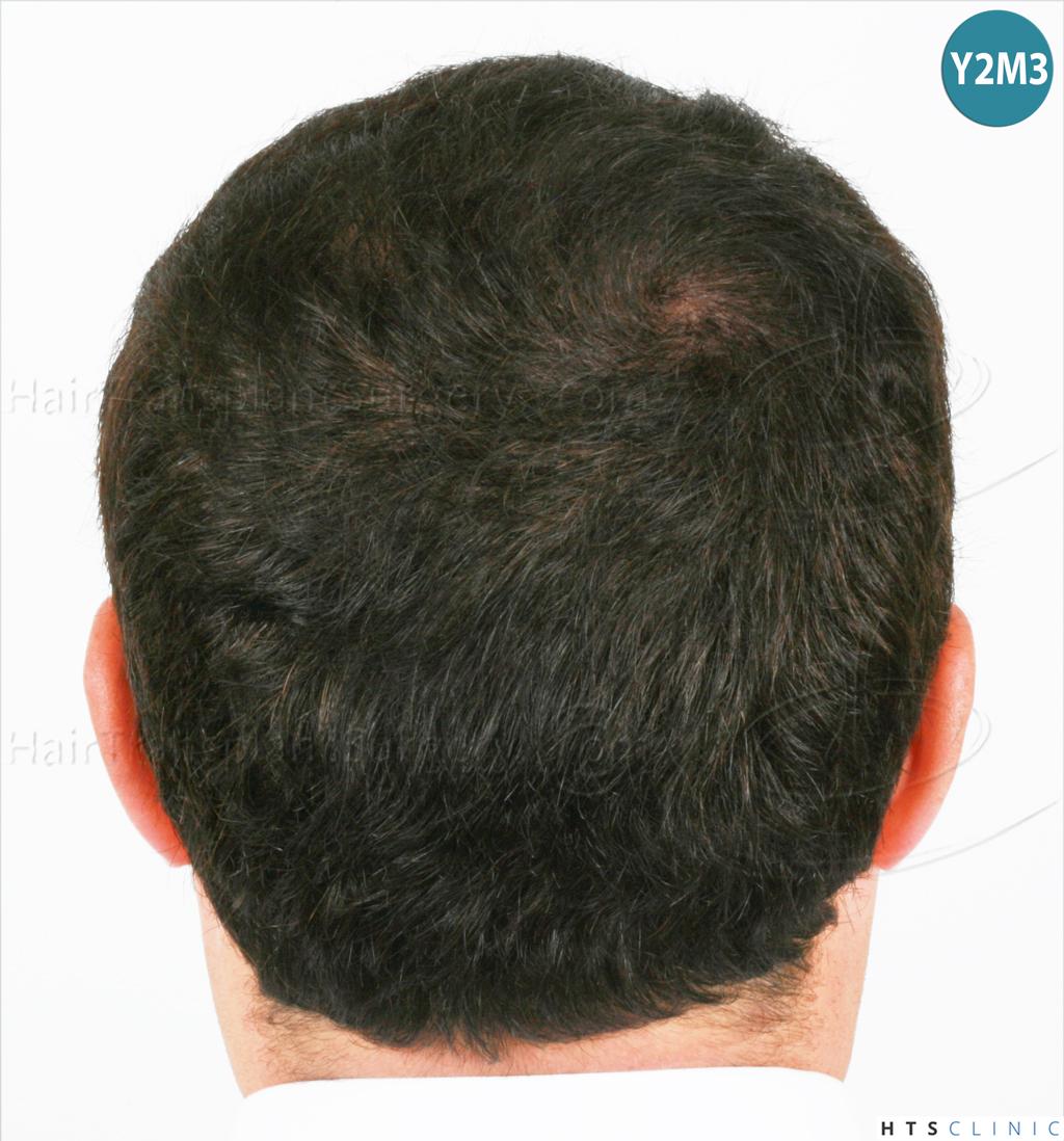 Dr.Devroye-HTS-Clinic-983-FUT-Vertex-14.jpg