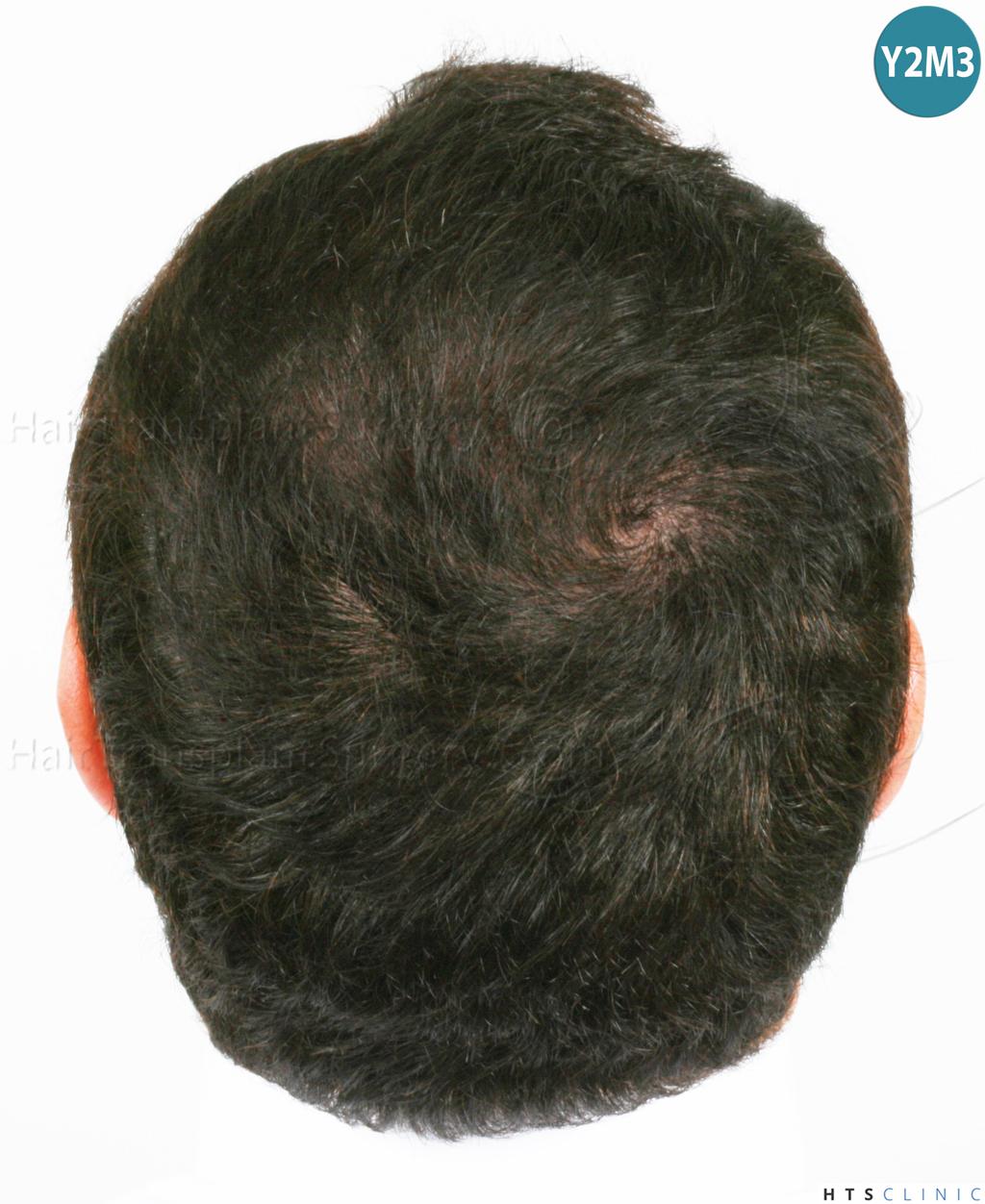 Dr.Devroye-HTS-Clinic-983-FUT-Vertex-15.jpg