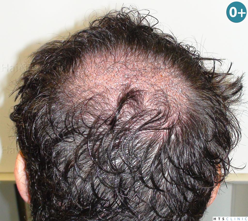Dr.Devroye-HTS-Clinic-983-FUT-Vertex-4.jpg
