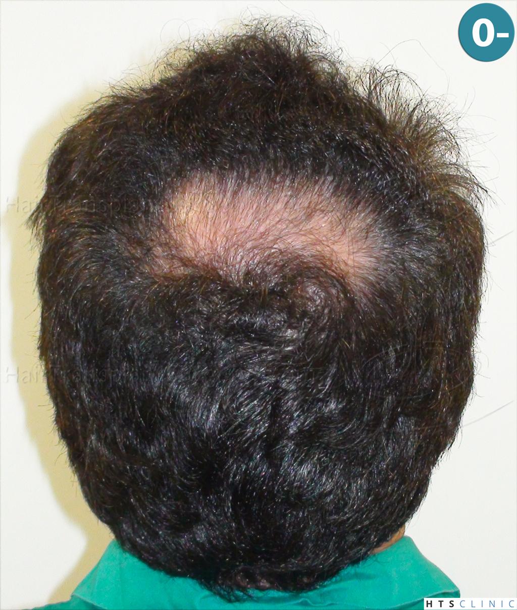 Dr.Devroye-HTS-Clinic-983-FUT-Vertex-2.jpg