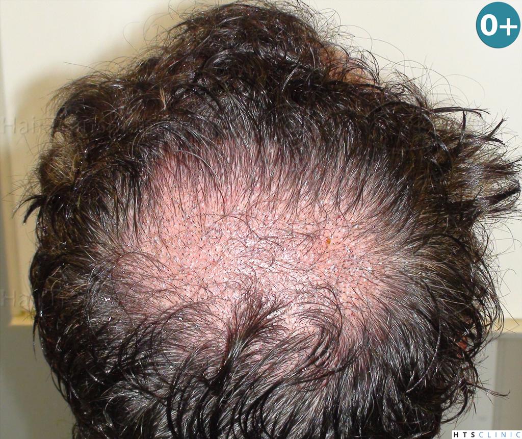 Dr.Devroye-HTS-Clinic-983-FUT-Vertex-5.jpg