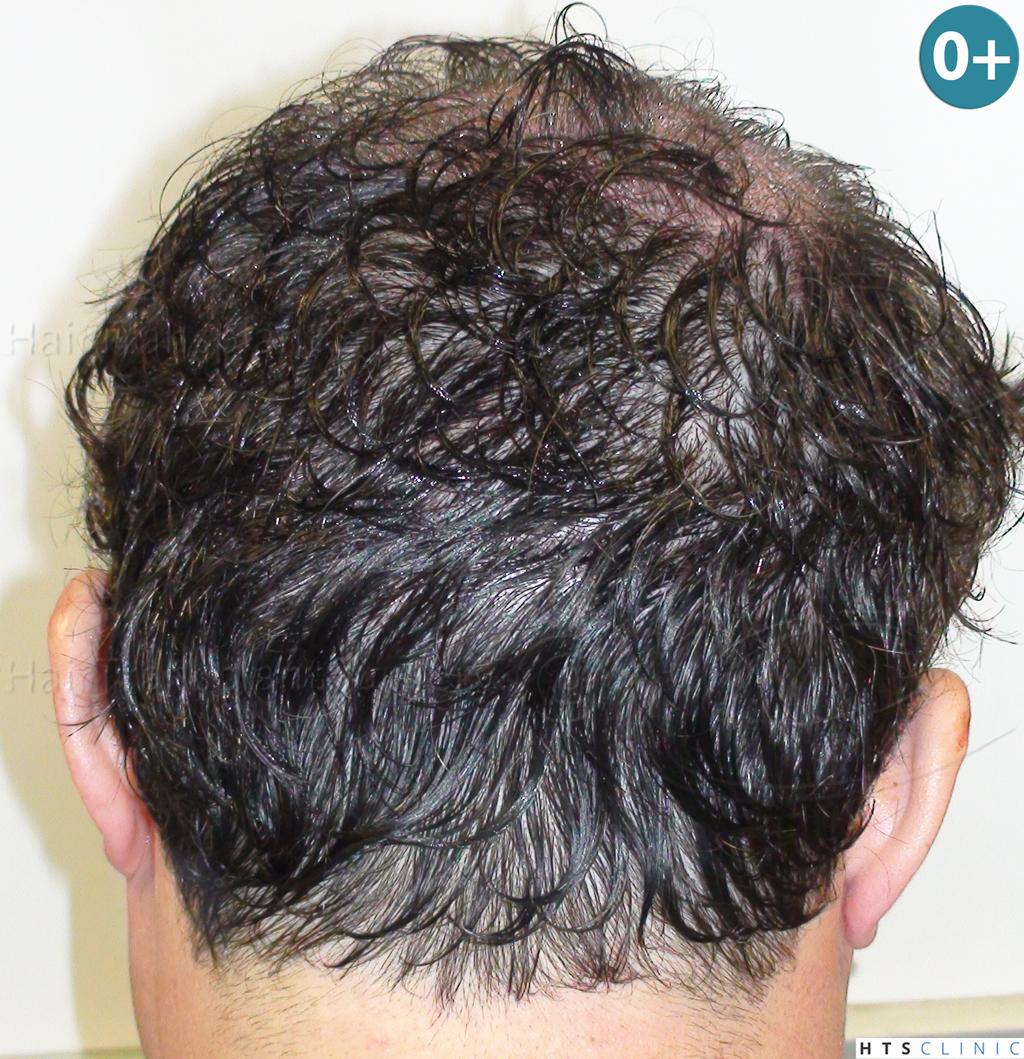 Dr.Devroye-HTS-Clinic-983-FUT-Vertex-3.jpg