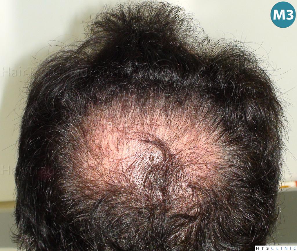 Dr.Devroye-HTS-Clinic-983-FUT-Vertex-7.jpg