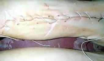 Cochon de lait rôti - Etape 7