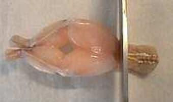 Cuisses de grenouilles sautées - Etape 2