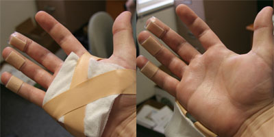 Yeah yeah, I burned my hand