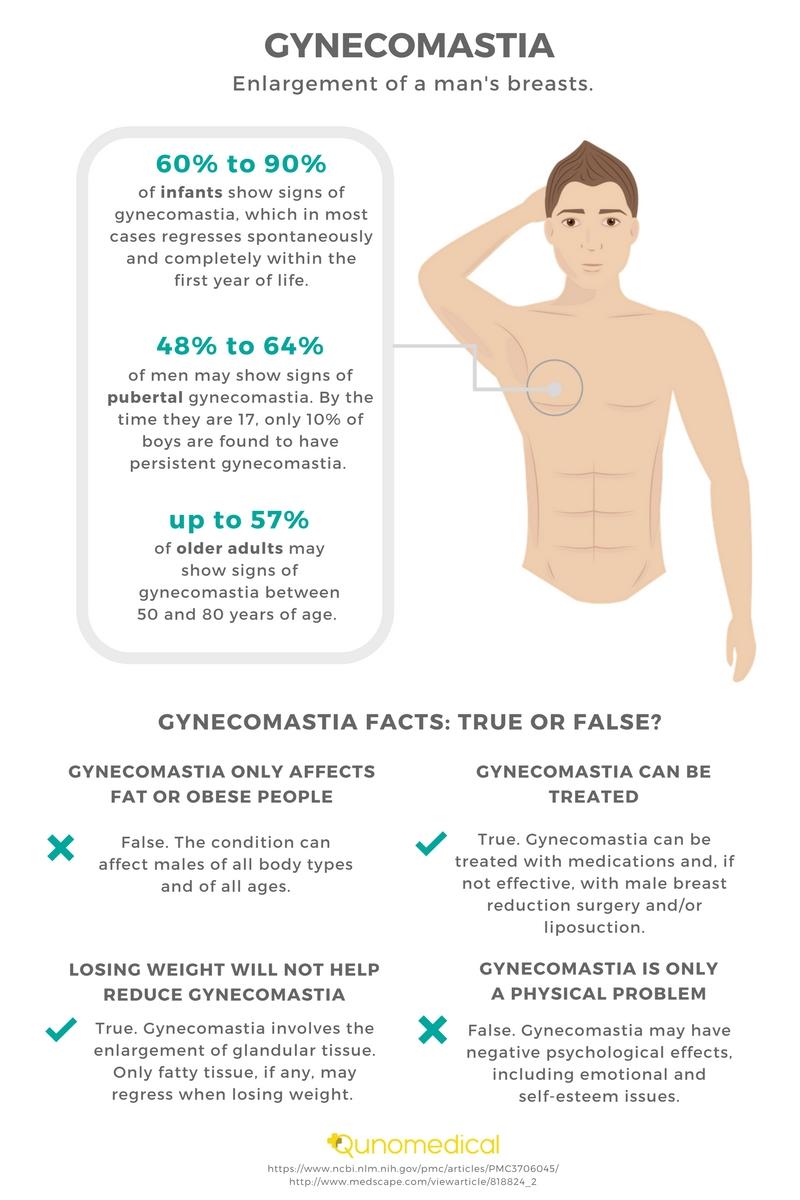 Gynecomastia Infographic