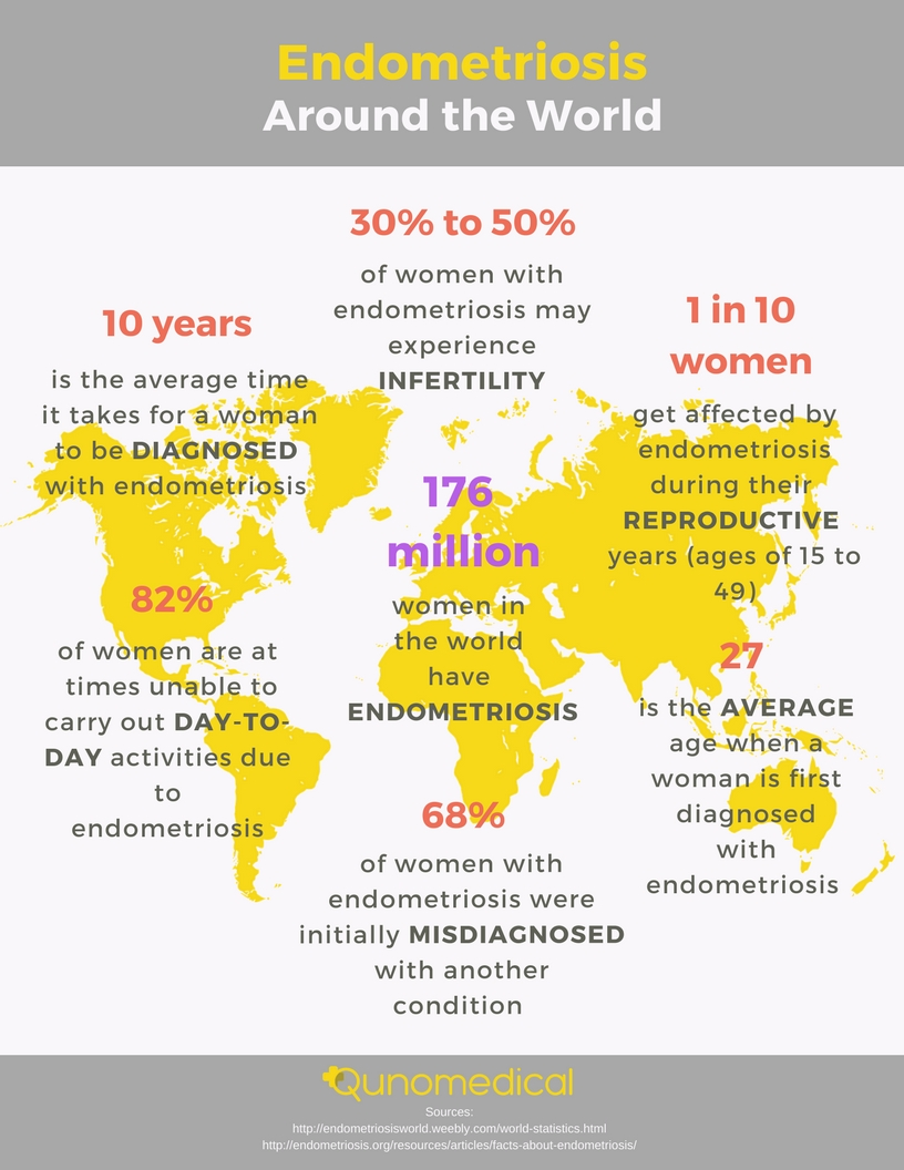 Endometriosis in numbers: How many women are affected globally, and how?