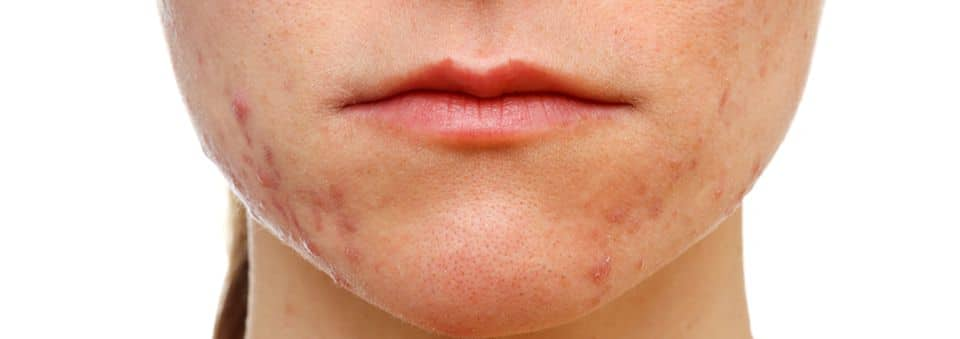 q for skin acne