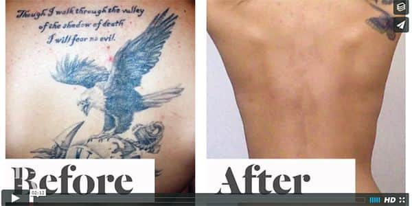 100 tattoo removal cream cost in revitol scar cream for I want to remove my tattoo at home