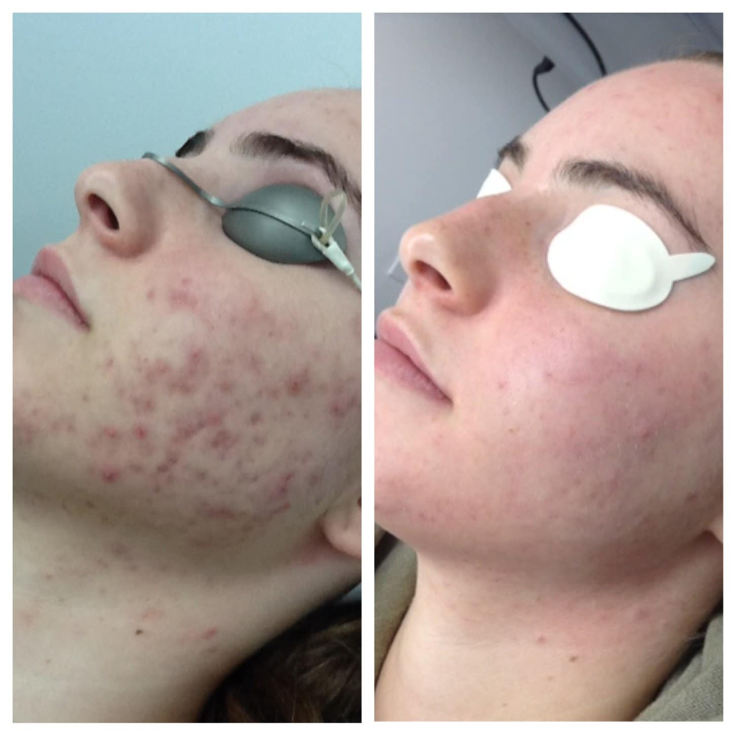 Clear + Brilliant Before & After