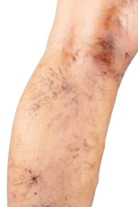 varicose and spider veins