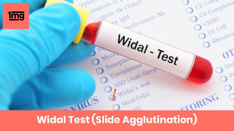 Widal Test (Slide Agglutination)
