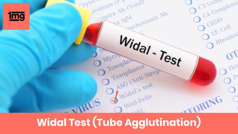 Widal Test (Tube Agglutination)