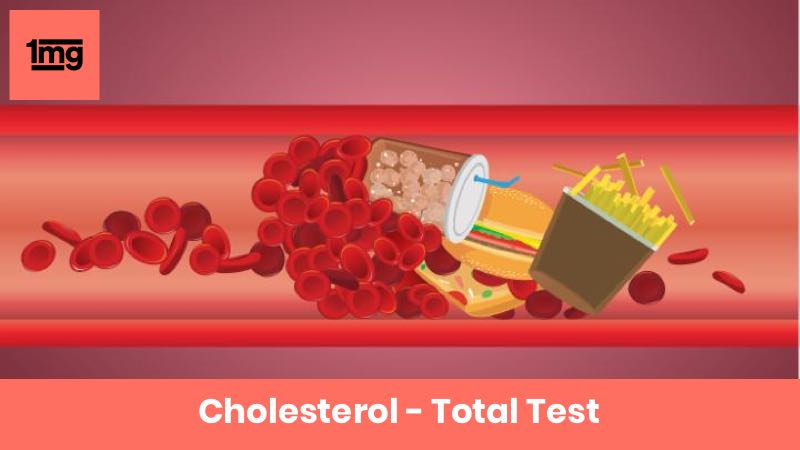 Cholesterol - Total