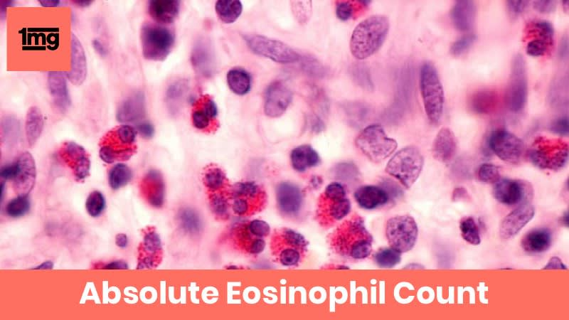 Absolute Eosinophil Count