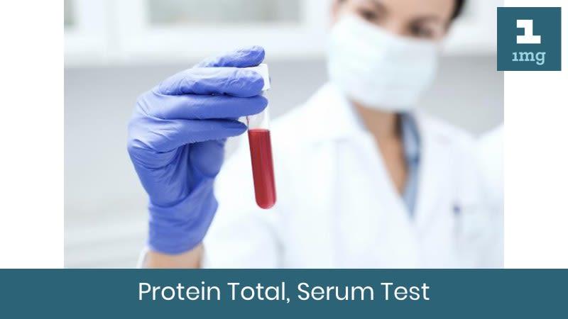 Protein Total, Serum
