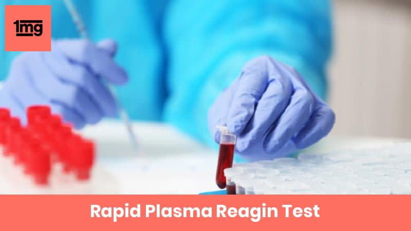 Rapid Plasma Reagin