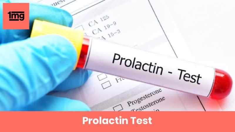 Prolactin Test